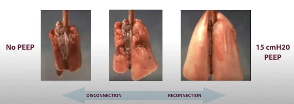 No PEEP Disconnection to 15 cmH20 PEEP Reconnection
